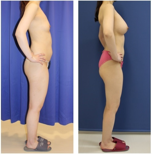 脂肪移植豊胸 1クール(1年間に3回の脂肪移植豊胸) 終了後 約5年後再診_d0092965_03034779.jpg