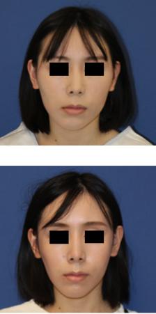 頬骨弓骨骨切り(再構築法)_c0193771_01551311.png