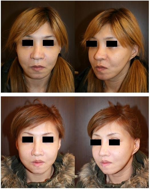 2007年にある患者さんとの出会い そして東京医科歯科大学歯学部入学~日本矯正歯科学会認定合格までの13年間を振り返って_d0092965_07371701.jpg