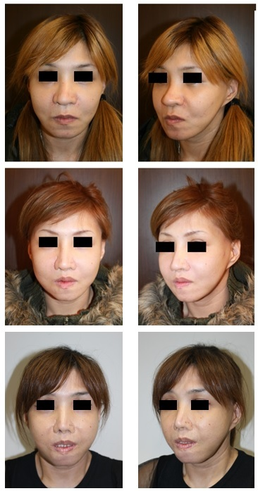 2007年にある患者さんとの出会い そして東京医科歯科大学歯学部入学~日本矯正歯科学会認定合格までの13年間を振り返って_d0092965_07372798.jpg