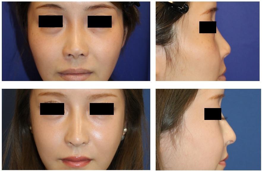 頬骨V字骨切術、 他院鼻中隔延長術術後 修正術 (肋軟骨使用) 、 他院鼻孔縁延長術 術後修正術  、大陰唇軟部組織移植術 術後約3年_d0092965_03301660.jpg