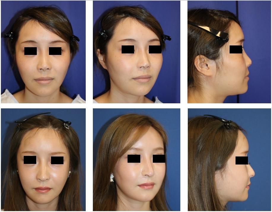 頬骨V字骨切術、 他院鼻中隔延長術術後 修正術 (肋軟骨使用) 、 他院鼻孔縁延長術 術後修正術  、大陰唇軟部組織移植術 術後約3年_d0092965_03564261.jpg