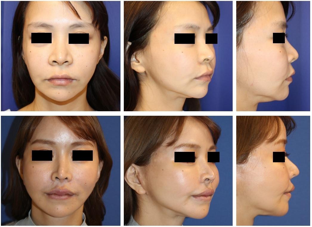 鼻根縮小術、小鼻縮小術、鼻尖縮小術、鼻中隔延長術、人中短縮術、口角挙上術 術後約2年、SMASフェイスリフト、ミッドフェイスリフト、アキュスカルプレーザー+ミントリフト術後約1年4か月再診時_d0092965_00590122.jpg