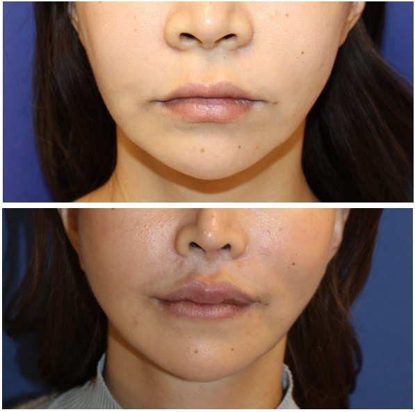 小鼻縮小、人中短縮術、口角挙上術(外側法)  術後約1年4か月_d0092965_02460841.jpg