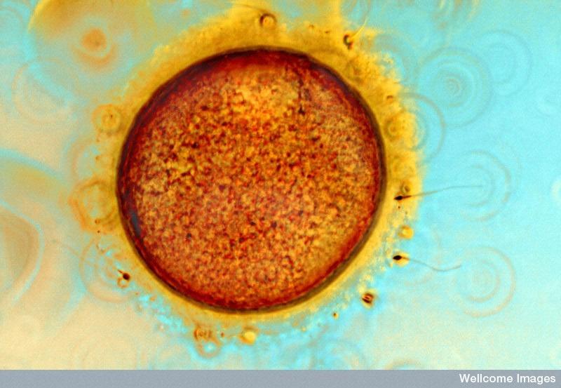 note記事より「加齢精子は次世代の多様性を増す」_d0028322_10505934.jpg
