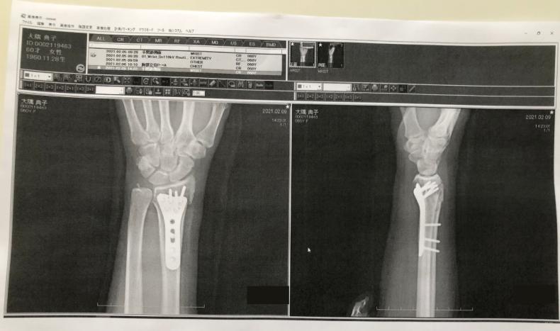 右手首骨折顛末_d0028322_23090510.png