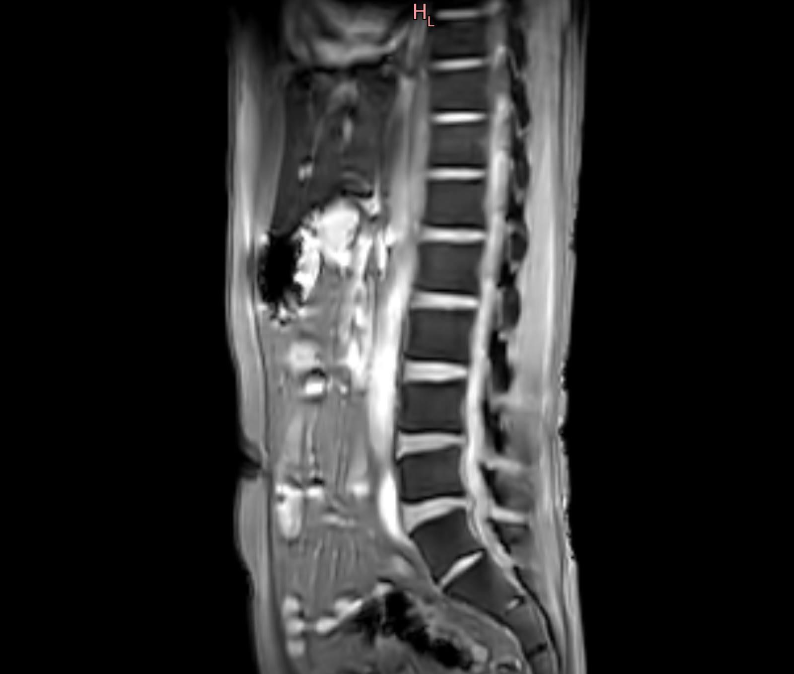 急性腰痛症_c0006305_08405347.jpg