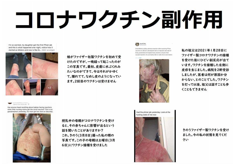 【超ド級:コロナ最新情報】日本での大量虐殺!WHOねつ造のパンデミック告発映画製作中!10年前アフリカで赤十字がワクチンを打って殺した「エボラの真相」!エボラやエイズ、ポリオもウイルスはなかった!_e0069900_16000605.jpg