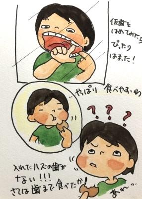 仮歯をはめた_f0072976_09541035.jpeg