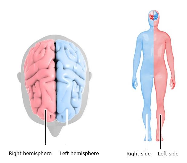 抑うつ状態の脳は、左半身に心因性疼痛を発現しうる?_b0112009_10472975.png