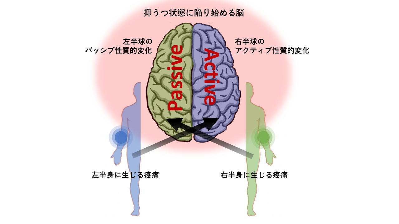 抑うつ状態の脳は、左半身に心因性疼痛を発現しうる?_b0112009_07373261.png