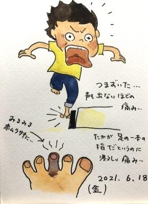 足の指 打撲_f0072976_10242473.jpeg