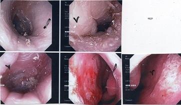 難治性外耳道皮膚炎が問題です。_a0082724_20451483.jpg