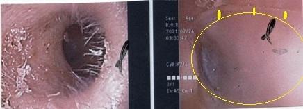 外耳道だけでなく鼓膜にも及んでいます。_a0082724_16035198.jpg