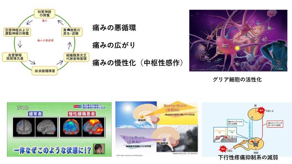 慢性痛(図説)_b0052170_01331926.jpg