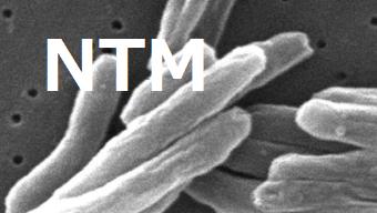 肺MAC症治療によるMAC抗体価の推移_e0156318_12543646.png