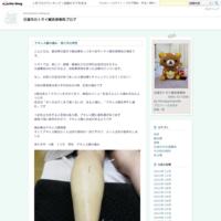 短い間でしたが。腕の針治療 - 日進市のトライ鍼灸接骨院ブログ